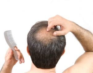 Treating Alopecia Areata in Maryland