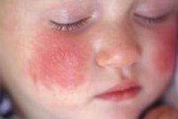 Atopic Eczema and Dermatitis Treatment in Maryland