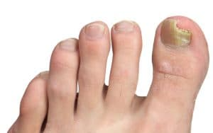 Toenail Fungus Treatment in Maryland