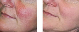Before and After Photo Rejuvenation Treatments