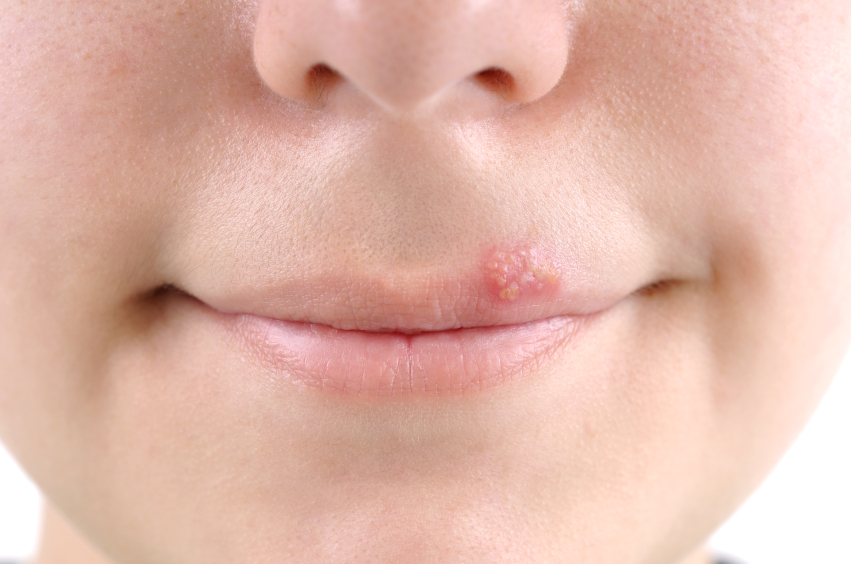 cold sore in adolescents