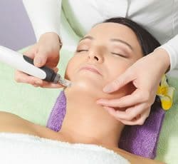 Microneedling Skin Treatment